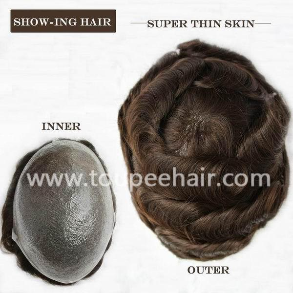 super thin skin hair replacement