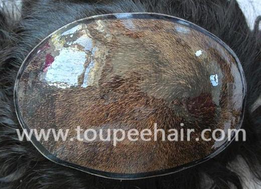 Thick injected poly skin hair systems